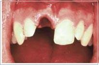 tandskade